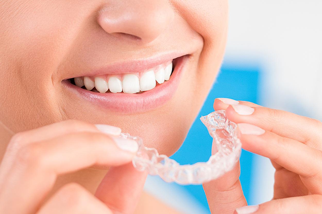 Dr. Peter Kremer - Zahnfehlstellung